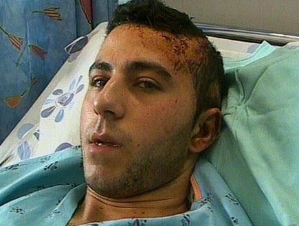 8 נערים תקפו צעיר ערבי (תמונת AVI: חדשות)