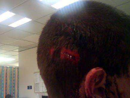 צעיר שהותקף בשכונת בת גלים (חדשות 2) (צילום: חדשות 2)