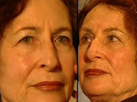 ההזדקנות אצל תאומים זהים (צילום: חדשות 2)