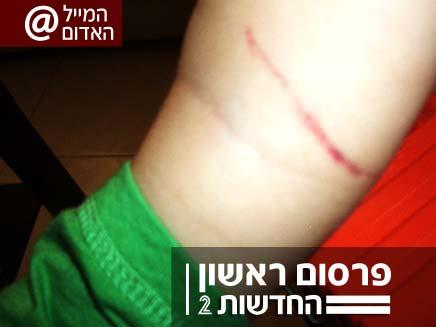 אלימות בגן (צילום: חדשות 2)