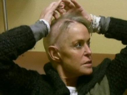 פארה פוסט חולה בסרטן (צילום: חדשות2)