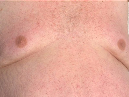 עליה בניתוחי הסרת חזה גברי (צילום: SUN)
