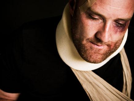 גבר עם פרצוף חבול (צילום: MmeEmil, Istock)