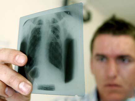 סרטן ריאות (צילום: חדשות 2)