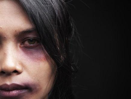 אישה מוכה (צילום: AtnoYdur, Istock)