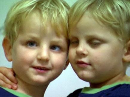 תאומים ממוצא ברזילאי (צילום: חדשות 2)