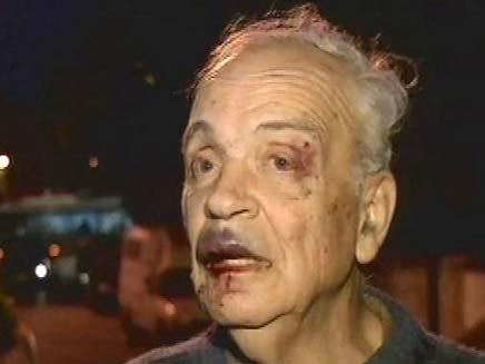 קשיש שהותקף בלי סיבה (צילום: חדשות 2)