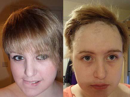נערה בריטית ששיערה נשר - לפני ואחרי (צילום: דיילי מייל)