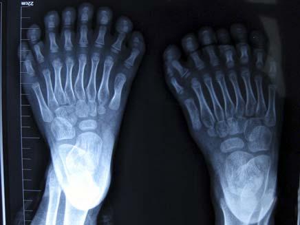 צילום הרנטגן של ילד האצבעות (צילום: רויטרס)