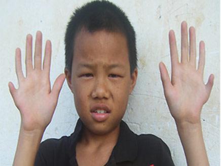 אויאנג גוואנצ'ון והאצבעות המיותרות (צילום: חדשות אורנג')