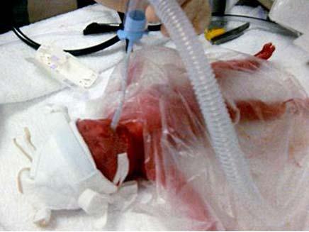 התינוקת והשקית שהצילה את חייה (צילום: TELEGRAPH)