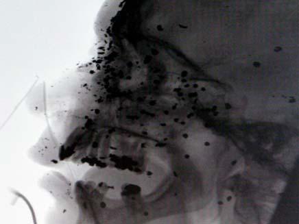 צילום הרנטגן אחרי הפציעה (צילום: דיילי מייל)