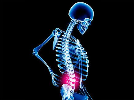 הסוף לכאבי הגב? (צילום: הסאן)