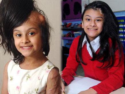 לפני ואחרי: סידרה אפזאל (צילום: dailymail)