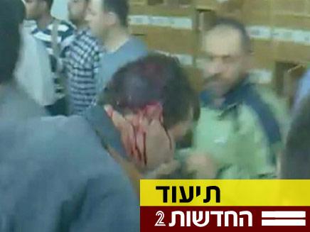 צפו בתמונות החדשות מסוריה (צילום: חדשות 2)