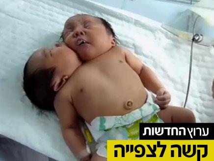 תינוקת אחת, שני ראשים (צילום: AP)