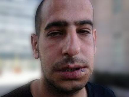תומר שרפי, לאחר התקיפה (צילום: חדשות 2)