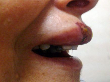 אישה אחת נפצעה בפניה (צילום: עדי עודד)