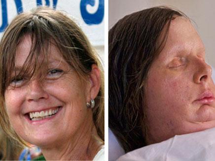 קרלה נאש, לפני התקיפה ואחרי הניתוח (צילום: רויטרס)