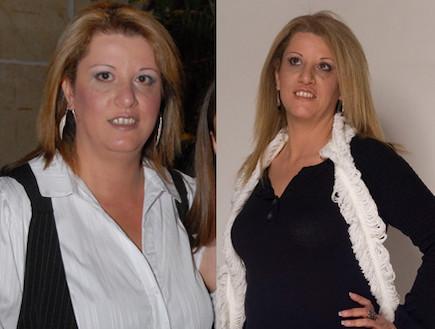 רחל סטיקלרו לפני ואחרי (צילום: תומר ושחר צלמים)
