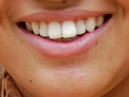 ממתיקים מלאכותיים מזיקים לשיניים (צילום: חדשות 2)