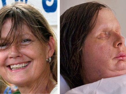 צ'רלה נאש - לפני ואחרי (צילום: רויטרס)