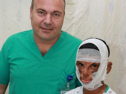 חן קנדלקר - נשרף בפניו והושתל לו עור של בקר (צילום: חדשות 2)
