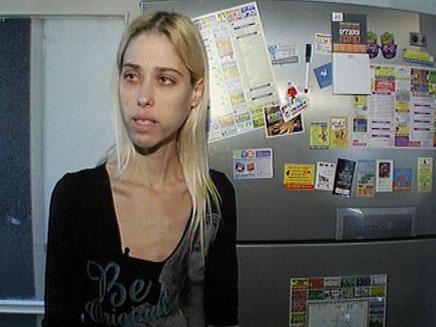 דוגמנית שסובלת מבולמיה, קארין, באומן (צילום: חדשות 2)