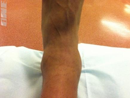 הרגל הנפוחה של מאור בוזגלו (ONE) (צילום: מערכת ONE)
