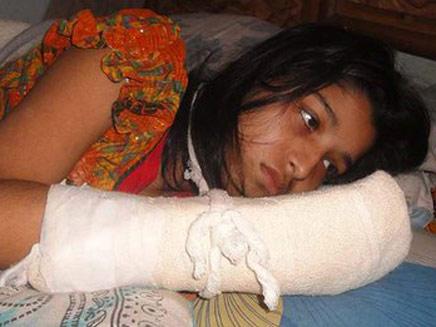הווה אחטר והיד הפצועה (צילום: חדשות 2)