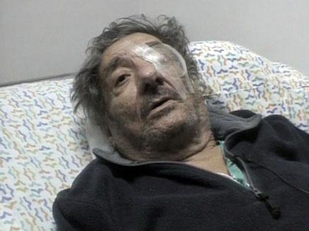 המותקף, יוסי חביב (צילום: חדשות 2)