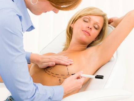 אישה לקראת ניתוח פלסטי בחזה (צילום: אימג'בנק / Thinkstock)