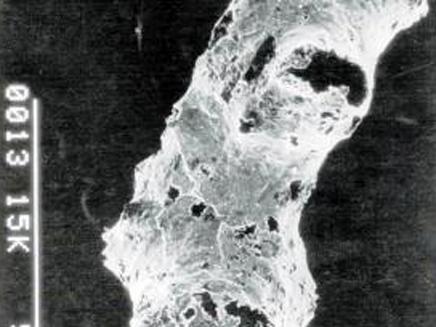שרידי המאובנים שנמצאו בנמיביה
