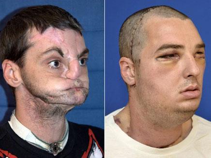 ריצ'ארד נוריס. לפני ואחרי הניתוח (משמאל לימין) (צילום: sky)