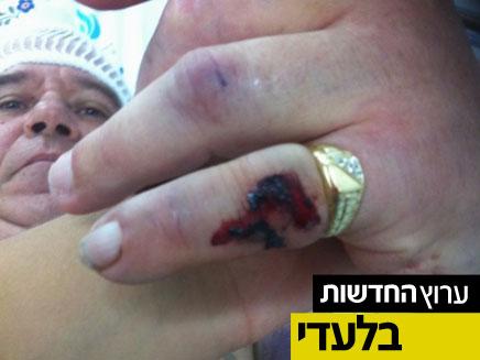 """אדם הוכה ע""""י סודני ונפצע קשה (צילום: חדשות 2)"""