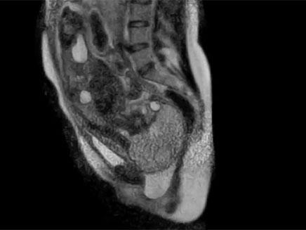 לידת תינוק במכשיר MRI (צילום: AJOG)