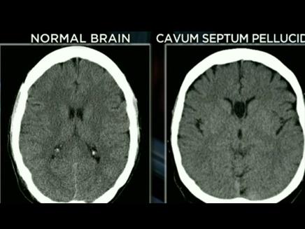 ההבדל בין מבנה מוח נורמלי לחריג (מימין) (צילום: CNN)