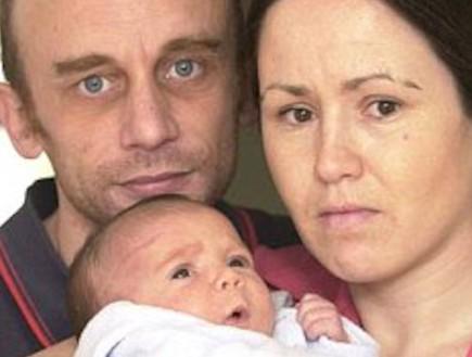 צלקת בראש התינוק כותצאה מניתוח קיסרי (צילום: צילום מסך daily mail)