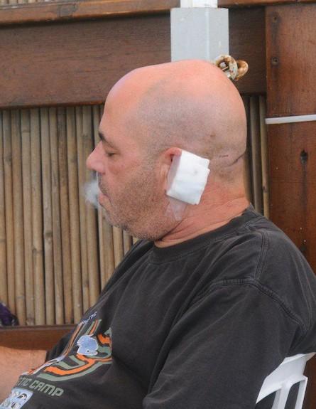 רון קופמן נח אחרי התקיפה