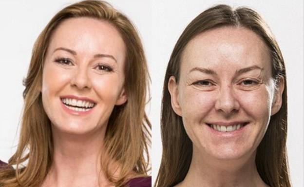 קרן קרוס - לפני ואחרי (צילום: צילום מסך אתר dailymail)