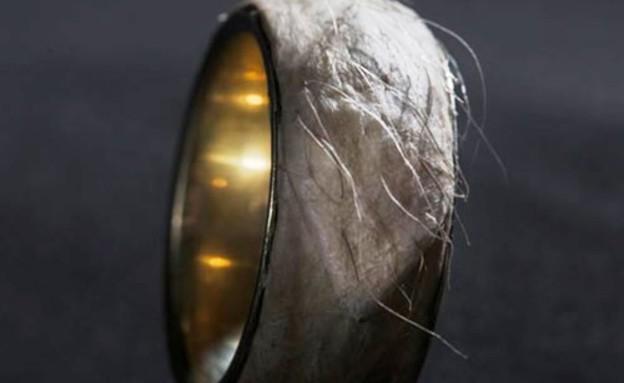 הטבעת המחרידה של סרולי רצ'ט (צילום: odditycentral.com)