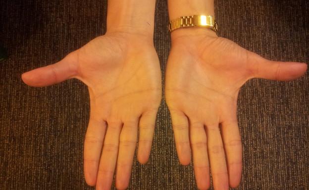כפות הידיים של י' (צילום: תומר ושחר צלמים, צילום ביתי)