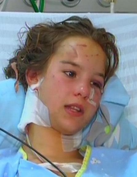 נערה שננשכה, פיטבול (צילום: חדשות 2)