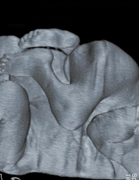 """התאום הסיאמי שהופרד (צילום: דוברות רמב""""ם)"""