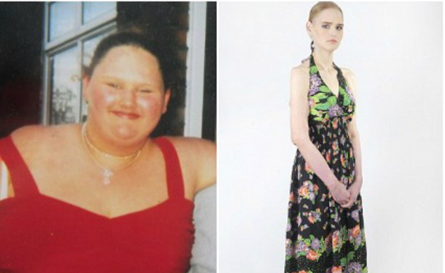 שאיבת שומן (צילום: dailymail.co.uk)