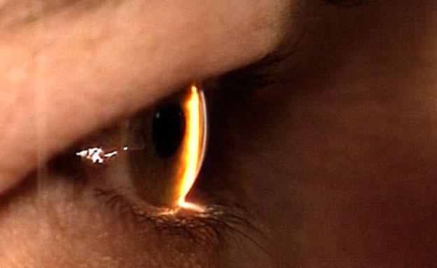 שבב קטן עשוי לתת תקווה לאלה שאיבדו ראייתם (צילום: חדשות 2)