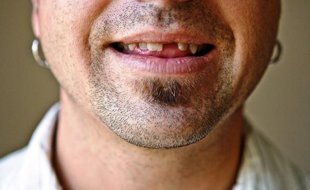 חיוך בלי שו (צילום: Thinkstock)