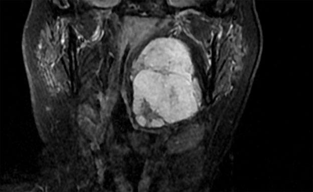 כריתת הגידול באמצעות רובוט (צילום MRI)