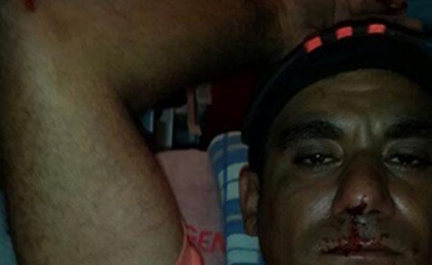 האב אייל לאחר התקיפה (צילום: חדשות 2)