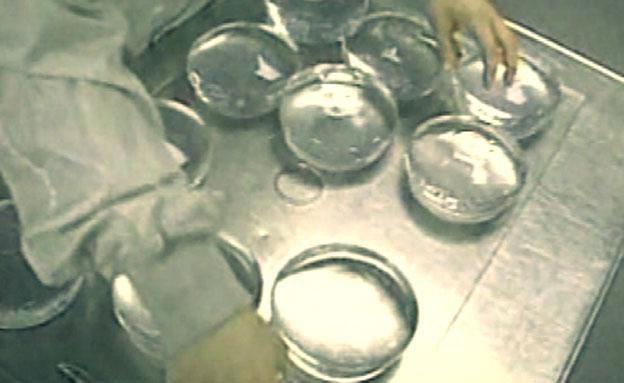 בגלל הגדלת חזה: התור לניתוח נדחה (צילום: חדשות 2)